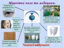 Магнітне поле та медицина. Видалення феромагнітних осколків. Вплив магнітного...