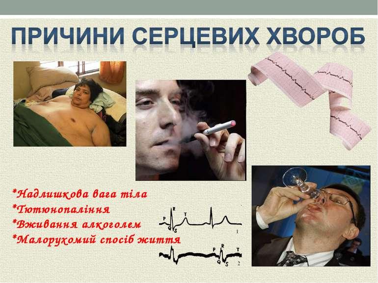 *Надлишкова вага тіла *Тютюнопаління *Вживання алкоголем *Малорухомий спосіб ...