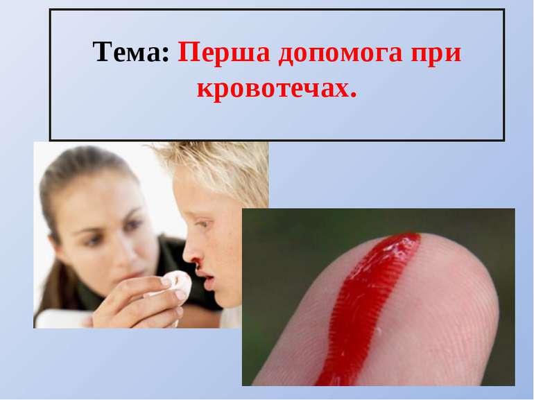 Тема: Перша допомога при кровотечах.