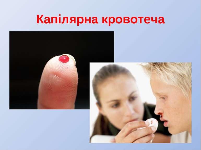 Капілярна кровотеча