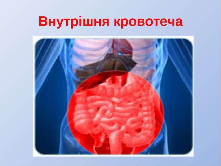 Внутрішня кровотеча