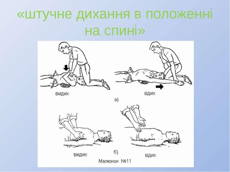 «штучне дихання в положенні на спині»
