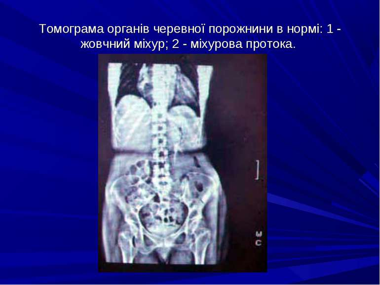 Томограма органів черевної порожнини в нормі: 1 - жовчний міхур; 2 - міхурова...