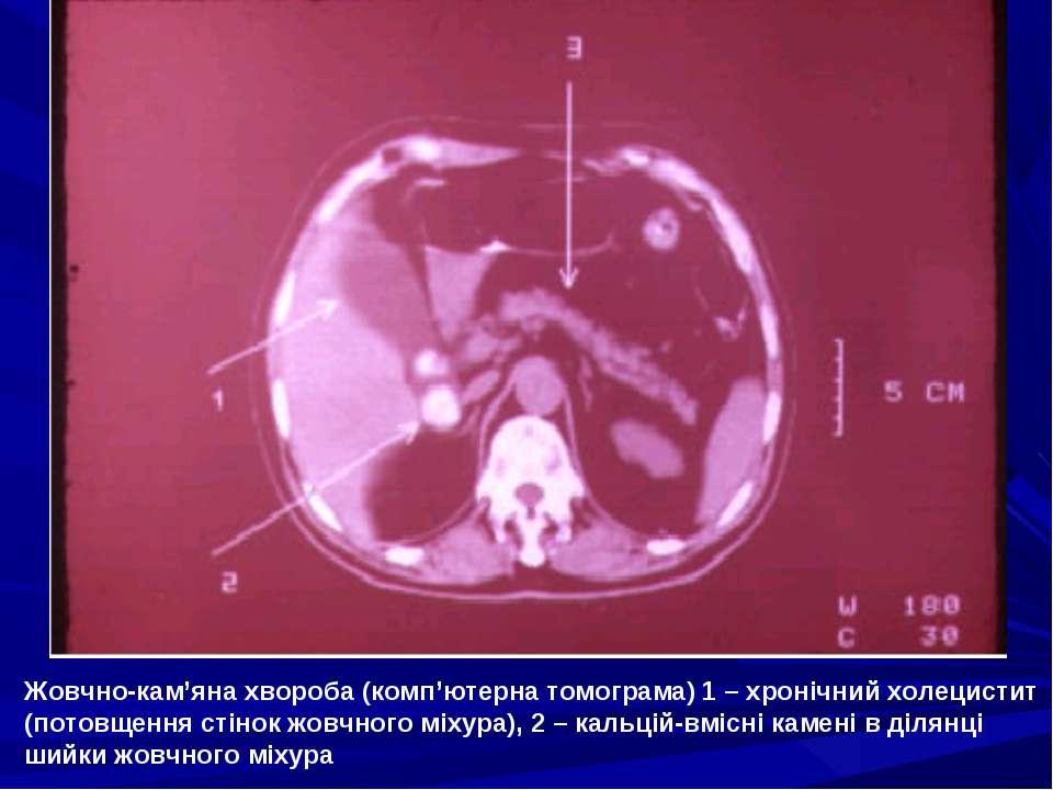 Жовчно-кам'яна хвороба (комп'ютерна томограма) 1 – хронічний холецистит (пото...
