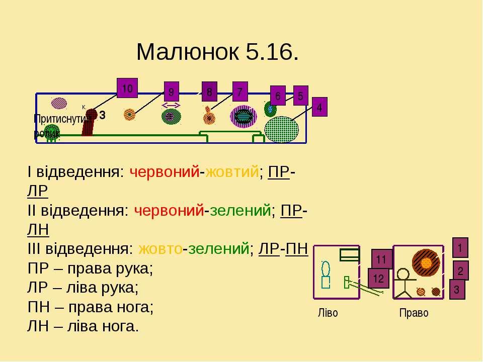 Малюнок 5.16. І відведення: червоний-жовтий; ПР-ЛР ІІ відведення: червоний-зе...