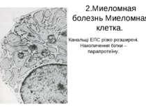 2.Миеломная болезнь Миеломная клетка. Канальці ЕПС різко розширені. Накопичен...