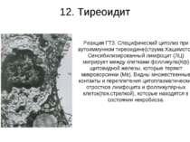 12. Тиреоидит Реакция ГТЗ. Специфический цитолиз при аутоиммунном тиреоидине(...