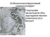 18.Мезангіопроліферативний гломерулонефрит Гіпертрофія мезангіоцитів (Мз), ві...