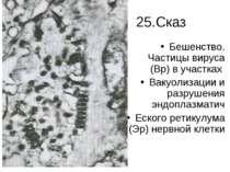25.Сказ Бешенство. Частицы вируса (Вр) в участках Вакуолизации и разрушения э...