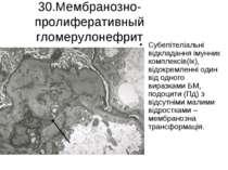 30.Мембранозно-пролиферативный гломерулонефрит Субепітеліальні відкладання ім...