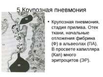 5.Крупозная пневмония Крупозная пневмония, стадия прилива. Отек ткани, началь...