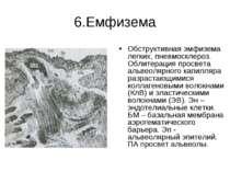 6.Емфизема Обструктивная эмфизема легких, пневмосклероз. Облитерация просвета...