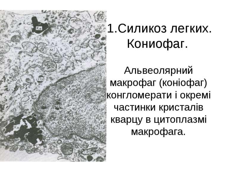 1.Силикоз легких. Кониофаг. Альвеолярний макрофаг (коніофаг) конгломерати і о...