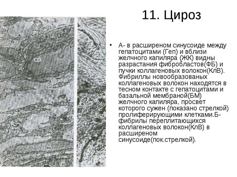 11. Цироз А- в расширеном синусоиде между гепатоцитами (Геп) и вблизи желчног...