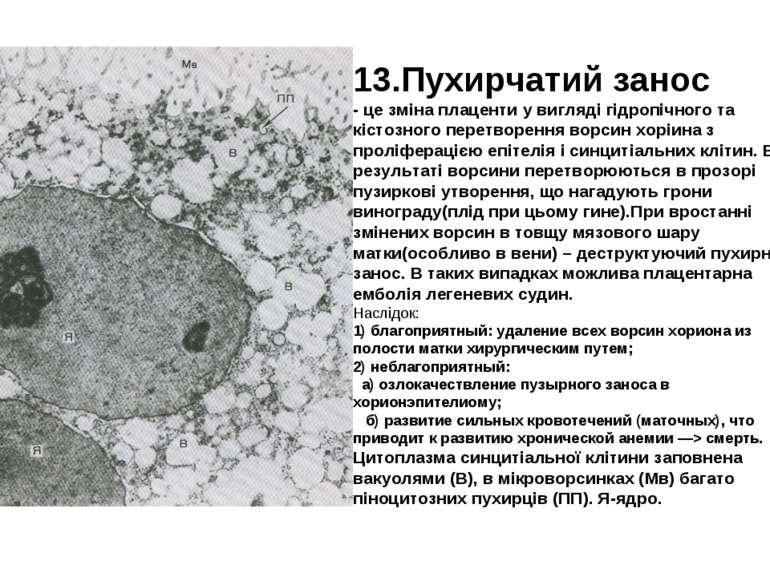 13.Пухирчатий занос - це зміна плаценти у вигляді гідропічного та кістозного ...