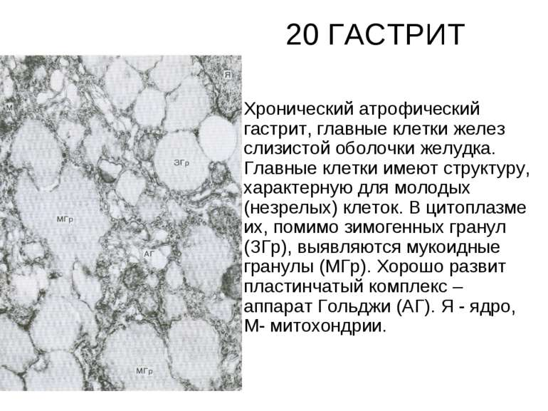 20 ГАСТРИТ Хронический атрофический гастрит, главные клетки желез слизистой о...