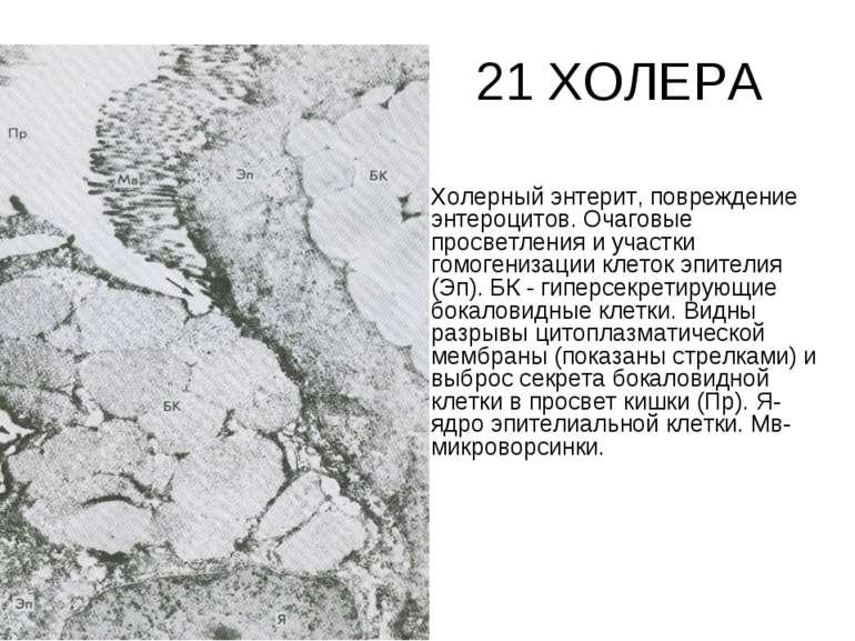 21 ХОЛЕРА Холерный энтерит, повреждение энтероцитов. Очаговые просветления и ...