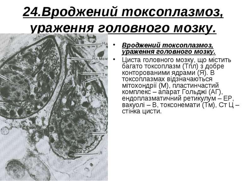 24.Вроджений токсоплазмоз, ураження головного мозку. Вроджений токсоплазмоз, ...