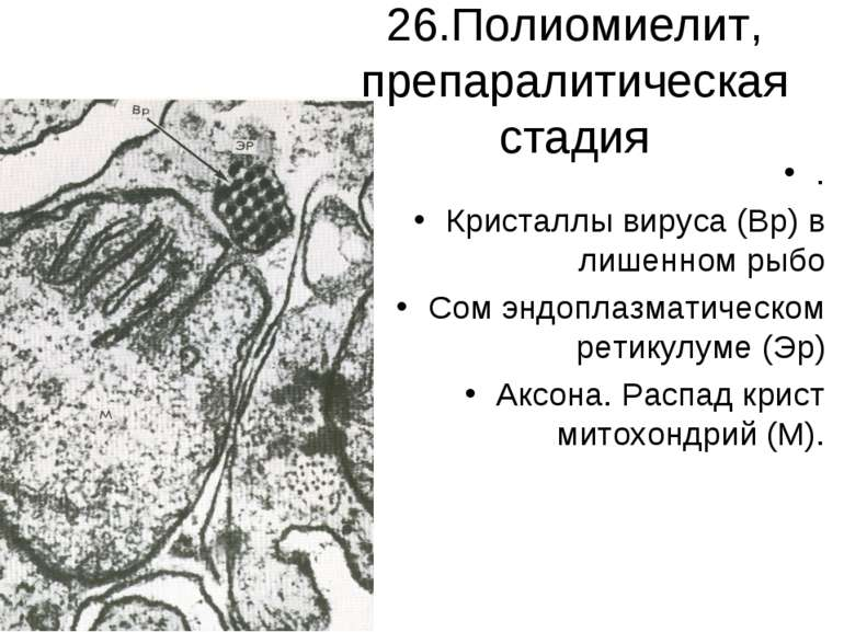 26.Полиомиелит, препаралитическая стадия . Кристаллы вируса (Вр) в лишенном р...