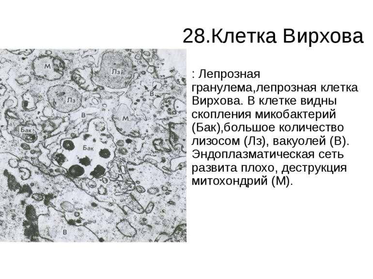 28.Клетка Вирхова : Лепрозная гранулема,лепрозная клетка Вирхова. В клетке ви...