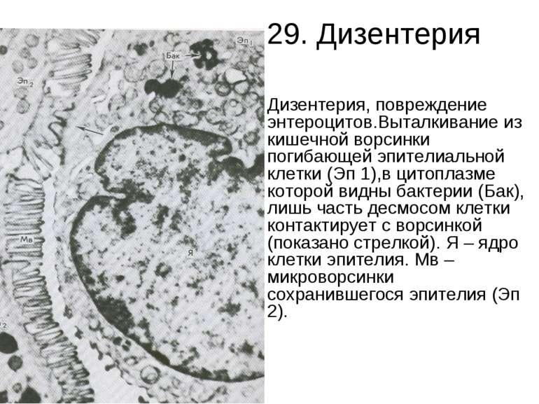 29. Дизентерия Дизентерия, повреждение энтероцитов.Выталкивание из кишечной в...
