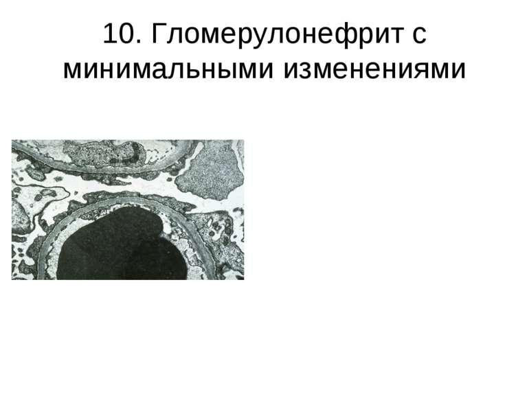 10. Гломерулонефрит с минимальными изменениями