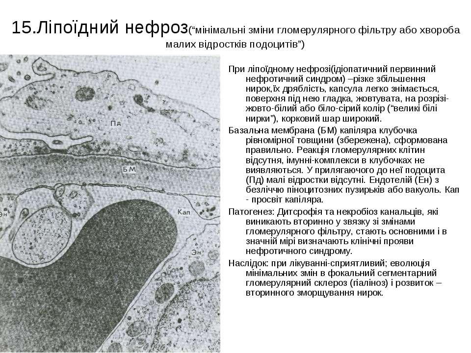 """15.Ліпоїдний нефроз(""""мінімальні зміни гломерулярного фільтру або хвороба мали..."""