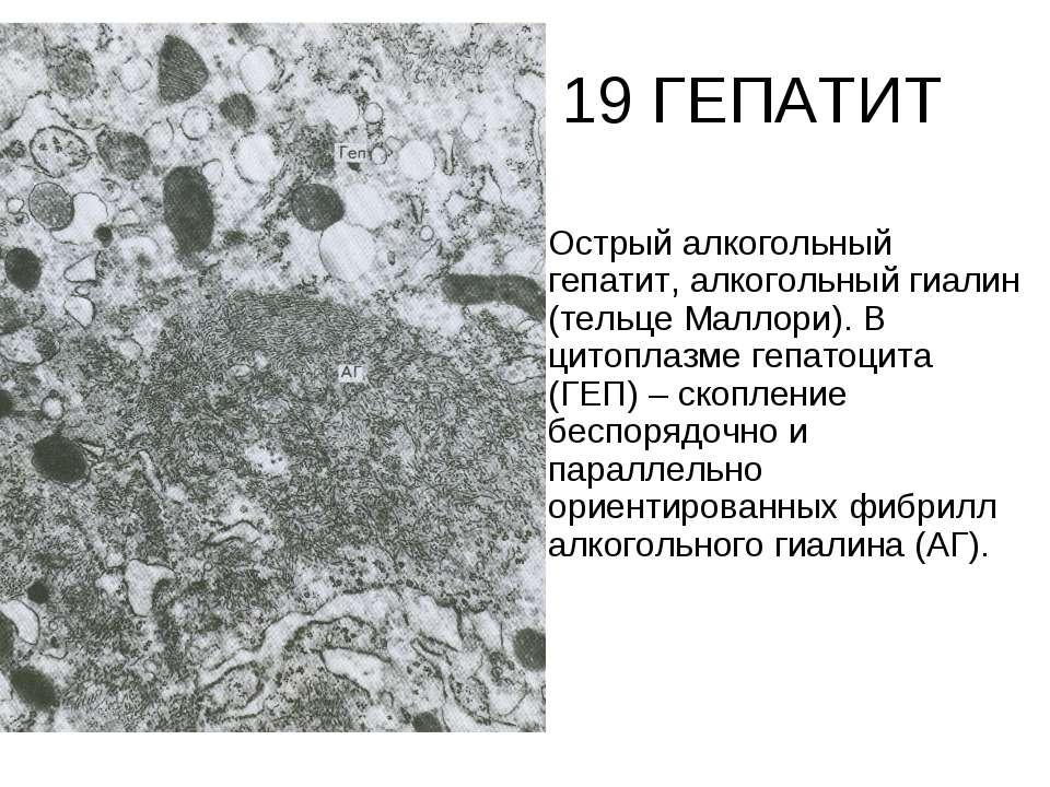 19 ГЕПАТИТ Острый алкогольный гепатит, алкогольный гиалин (тельце Маллори). В...