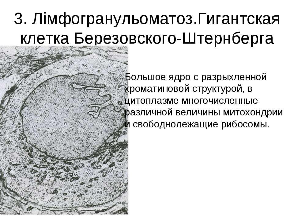 3. Лімфогранульоматоз.Гигантская клетка Березовского-Штернберга Большое ядро ...