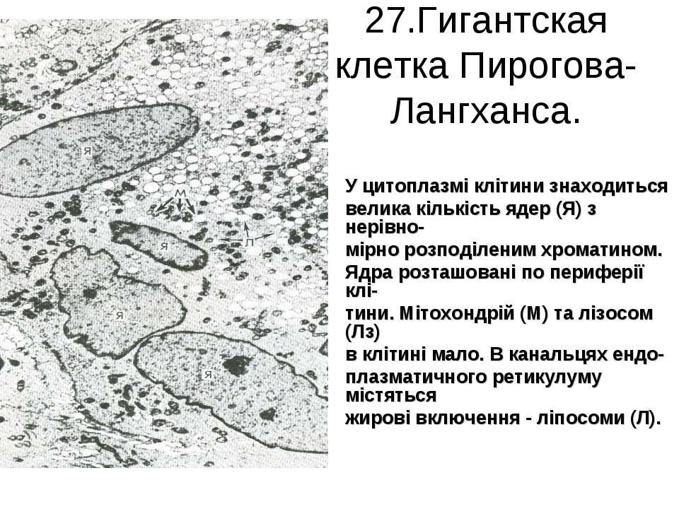 27.Гигантская клетка Пирогова-Лангханса. У цитоплазмі клітини знаходиться вел...