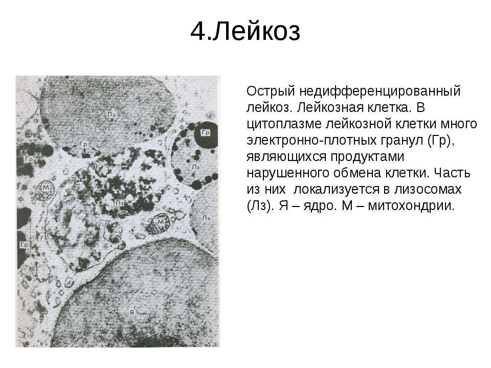4.Лейкоз Острый недифференцированный лейкоз. Лейкозная клетка. В цитоплазме л...