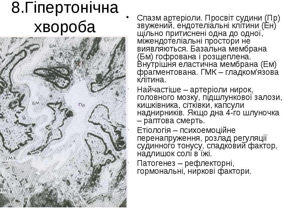 8.Гіпертонічна хвороба Спазм артеріоли. Просвіт судини (Пр) звужений, ендотел...