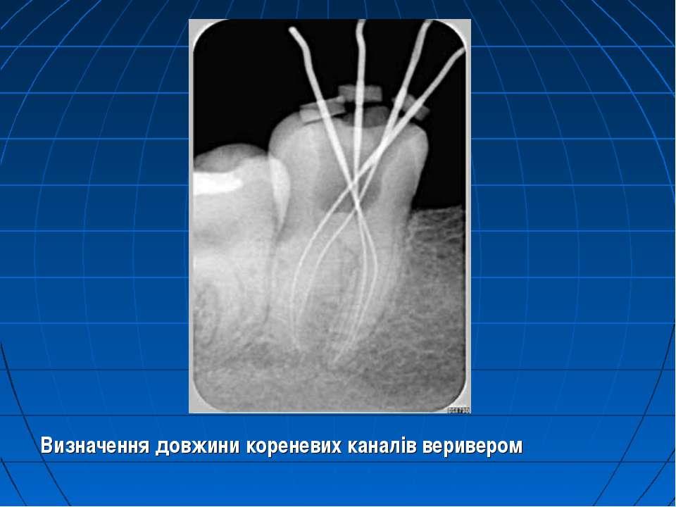 Визначення довжини кореневих каналів веривером