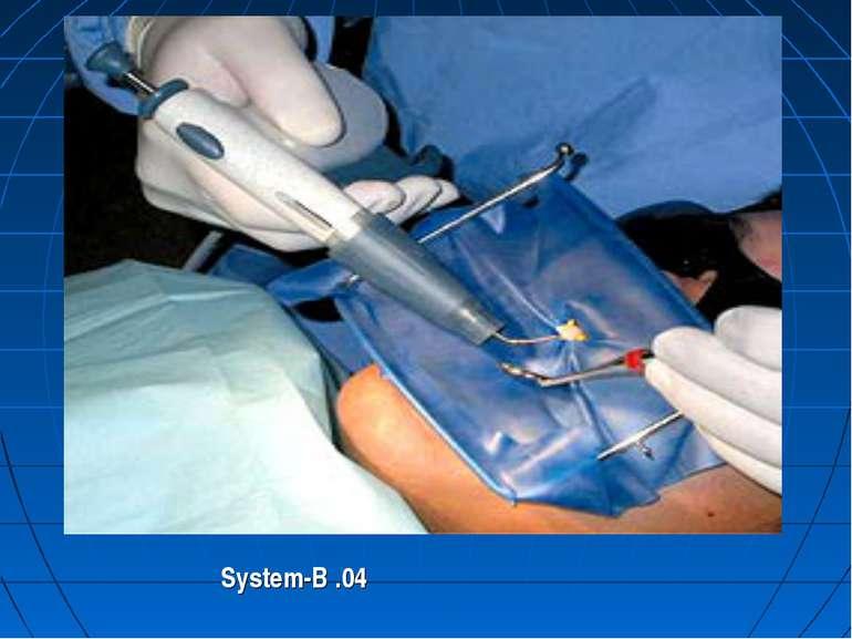 System-B .04