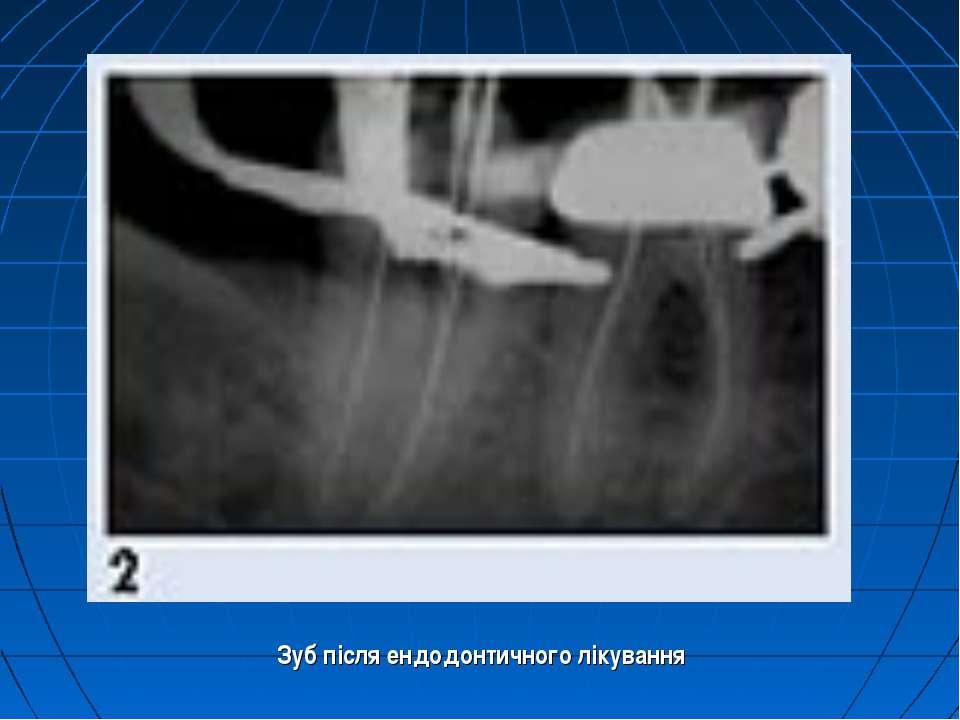 Зуб після ендодонтичного лікування