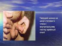 Твердий шанкр на шкірі статевого члена і внутрнішньому листку крайньої плоті