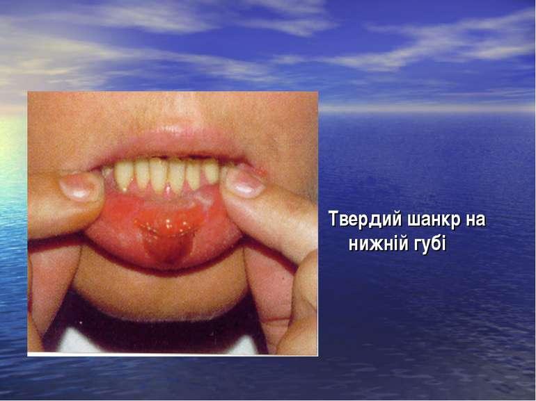 Твердий шанкр на нижній губі