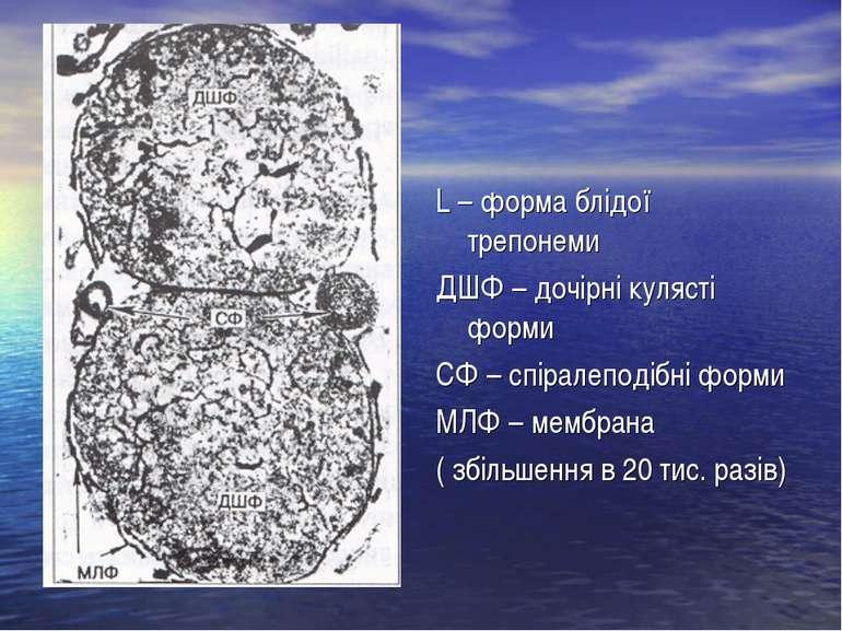 L – форма блідої трепонеми ДШФ – дочірні кулясті форми СФ – спіралеподібні фо...