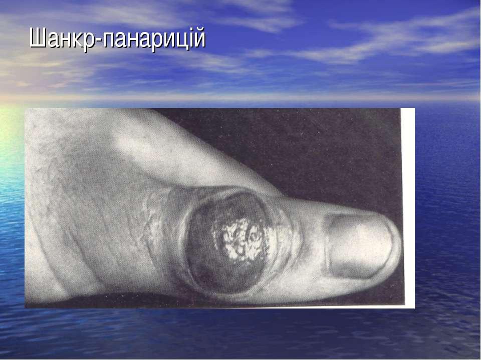Шанкр-панарицій