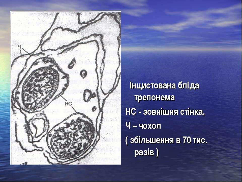 Інцистована бліда трепонема НС - зовнішня стінка, Ч – чохол ( збільшення в 70...