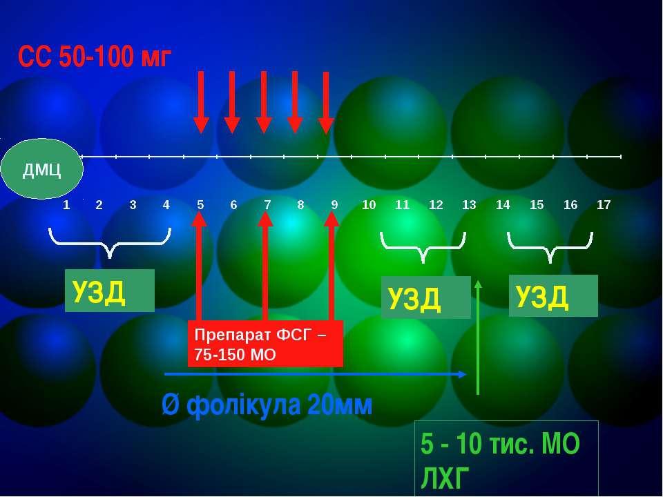 СС 50-100 мг УЗД УЗД УЗД Ø фолікула 20мм 5 - 10 тис. МО ЛХГ Препарат ФСГ – 75...
