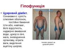 Гіпофункція Цукровий діабет. Ознаками є: сухість слизових оболонок, постійне ...