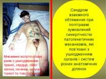 Синдром взаємного обтяження при політравмі зумовлений синергічністю патогенет...