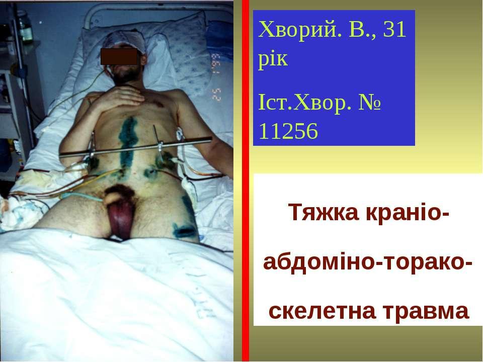 Хворий. В., 31 рік Іст.Хвор. № 11256 Тяжка краніо-абдоміно-торако-скелетна тр...