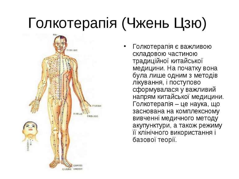 Голкотерапія (Чжень Цзю) Голкотерапія є важливою складовою частиною традиційн...