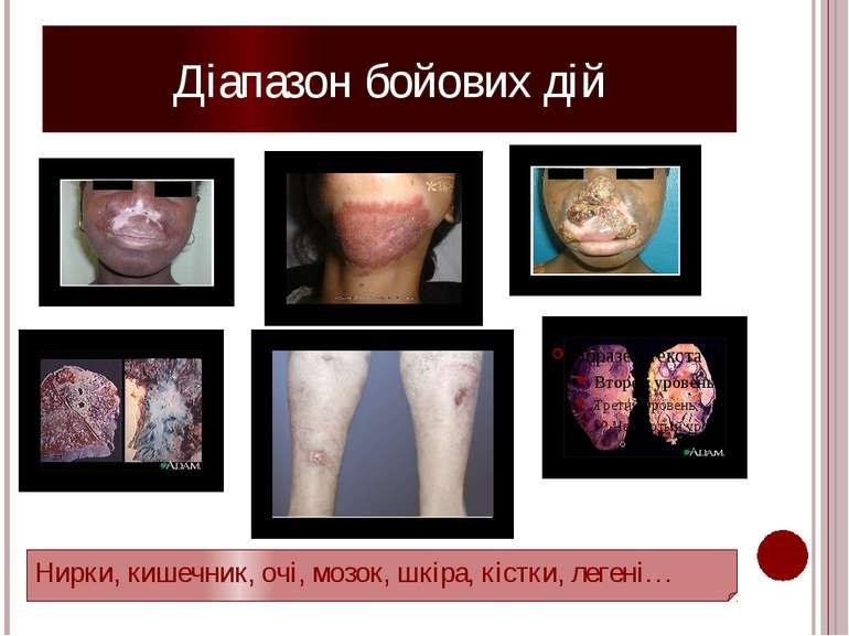 Діапазон бойових дій Нирки, кишечник, очі, мозок, шкіра, кістки, легені… Від ...