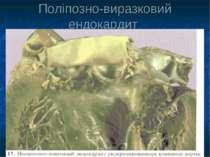 Поліпозно-виразковий ендокардит