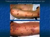 Геморагічні висипання на шкірі кінцівок при менінгококцемії