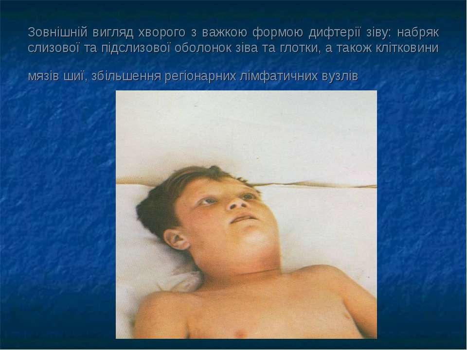 Зовнішній вигляд хворого з важкою формою дифтерії зіву: набряк слизової та пі...