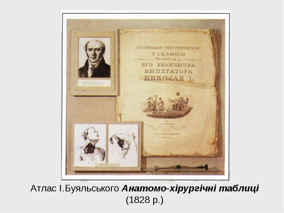 Атлас І.Буяльського Анатомо-хірургічні таблиці (1828 р.)